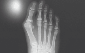 bunion pain Blaxcell