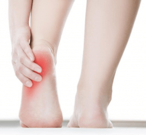 bunion treatment Erskineville