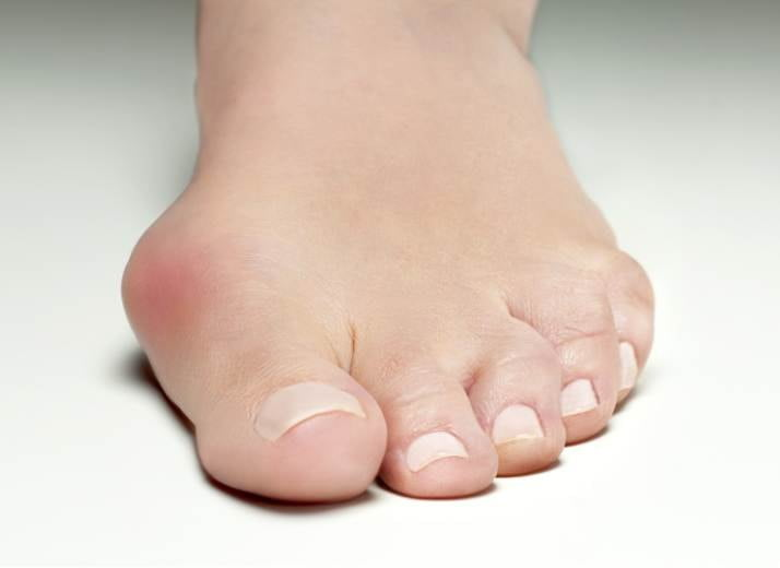bunion treatment sydney CBD