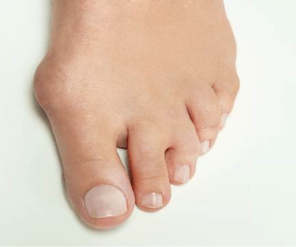 bunions North Balgowlah