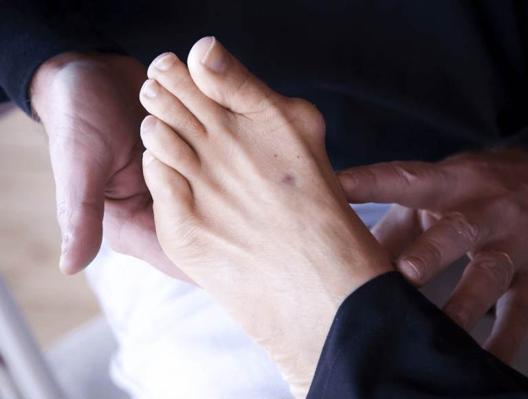 symptoms of a bunion sydney