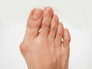 bunions North Turramurra