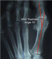 foot mobilisation for bunions sydney